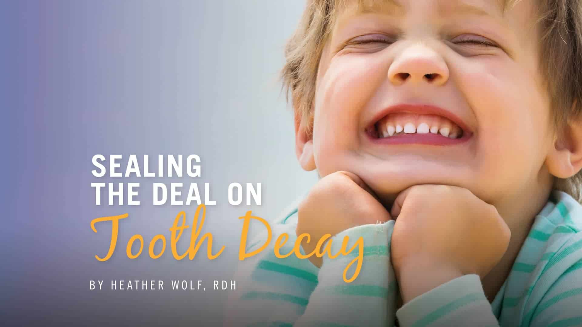 SEALING the deal on Tooth Decay